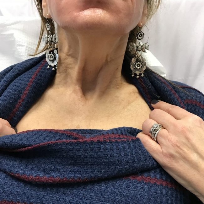 2 weeks before botox in platysmal bands of neck