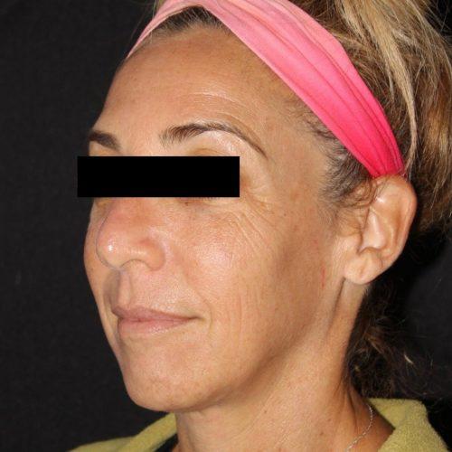 Before ZO Skinhealth and Medical Facial