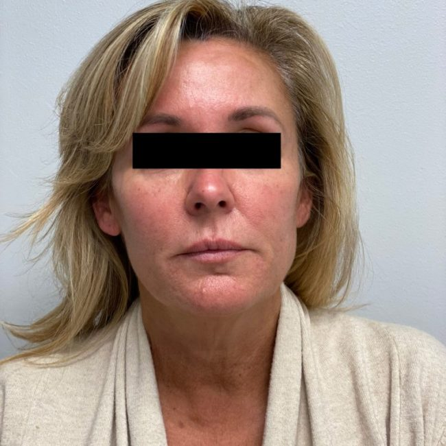 Silhouette InstaLift Before & Afters   Skin Therapeutics Med Spa