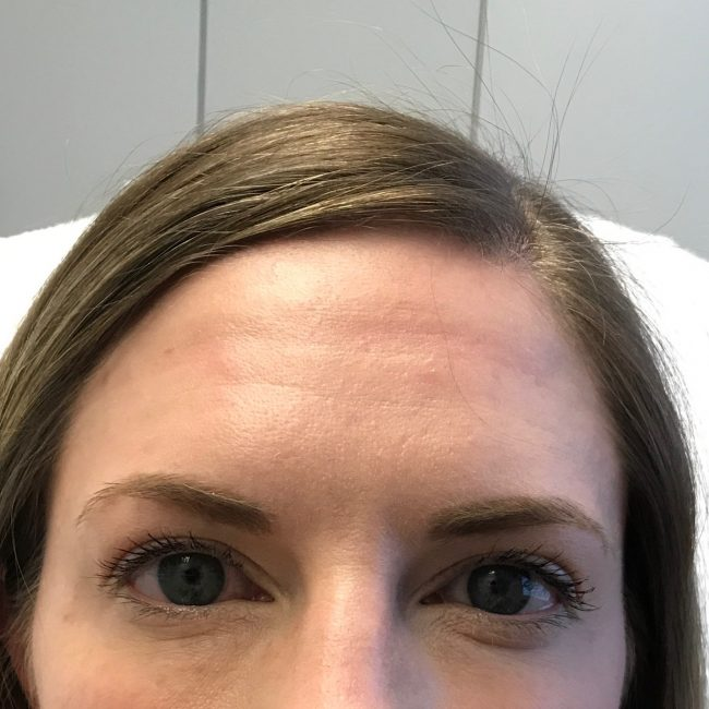 After botox in forehead