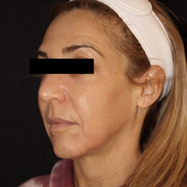 After zo skinhealth regimen and medical facials