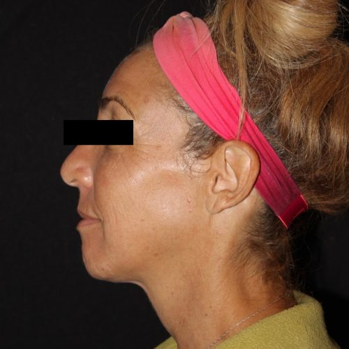 Before zo skinhealth regimen and medical facials