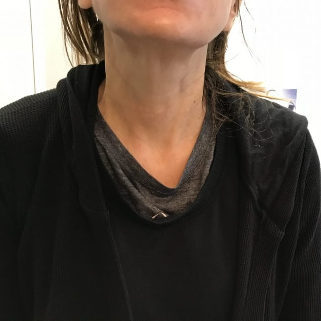 2 weeks after botox in platysmal bands of neck
