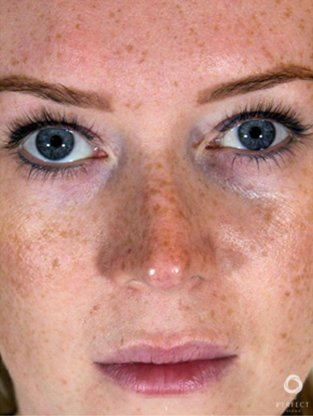 Facials & Peels Before & Afters   Skin Therapeutics Med Spa