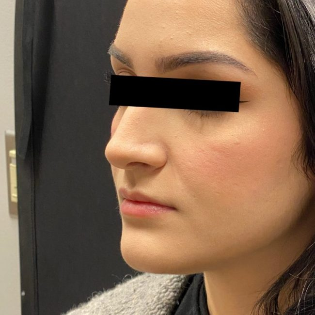 Fillers Before and After - Case 4, Image 1 - Female, age 25 – 34 - Baltimore, MD - Skin Therapeutics Med Spa