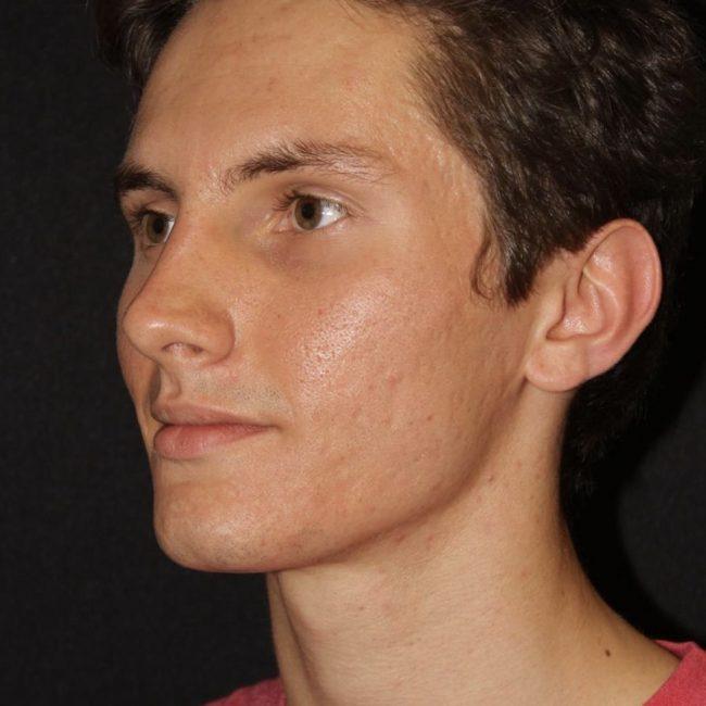 Microneedling Acne