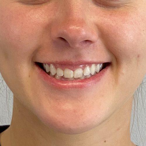 Botox before gummy smile