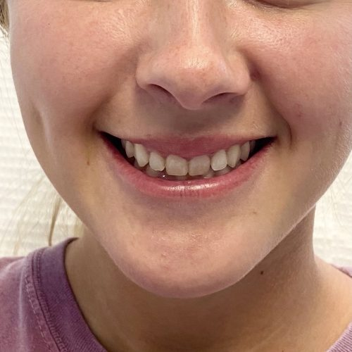 Botox After Gummy Smile