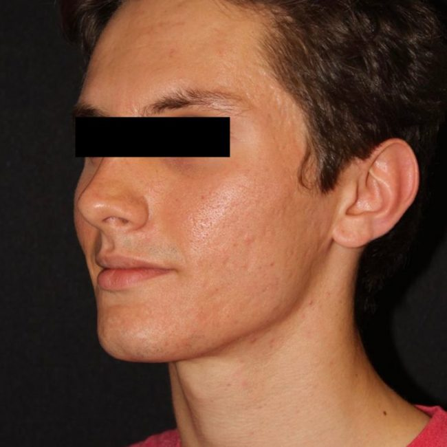Microneedling Acne After