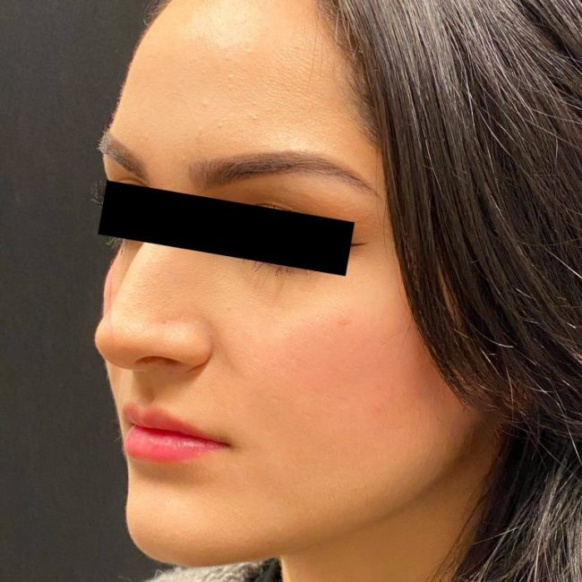 Fillers Before and After - Case 4, Image 2 - Female, age 25 – 34 - Baltimore, MD - Skin Therapeutics Med Spa