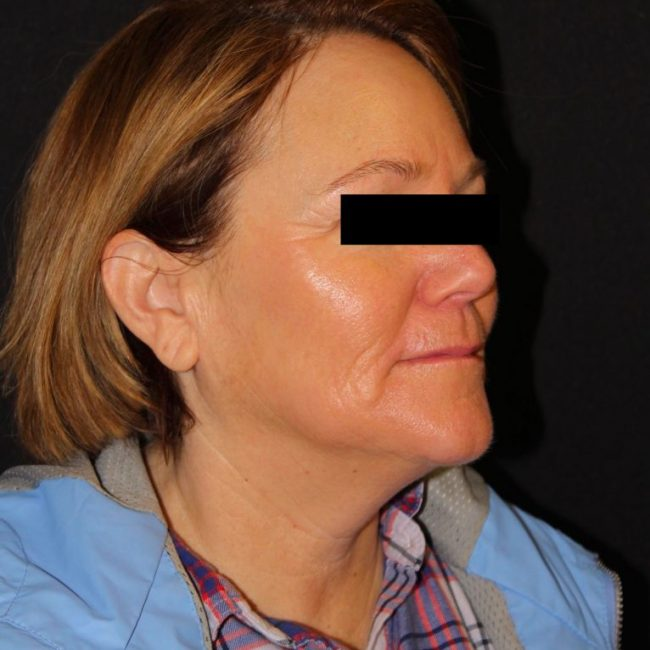 Microneedling Before & Afters   Skin Therapeutics Med Spa