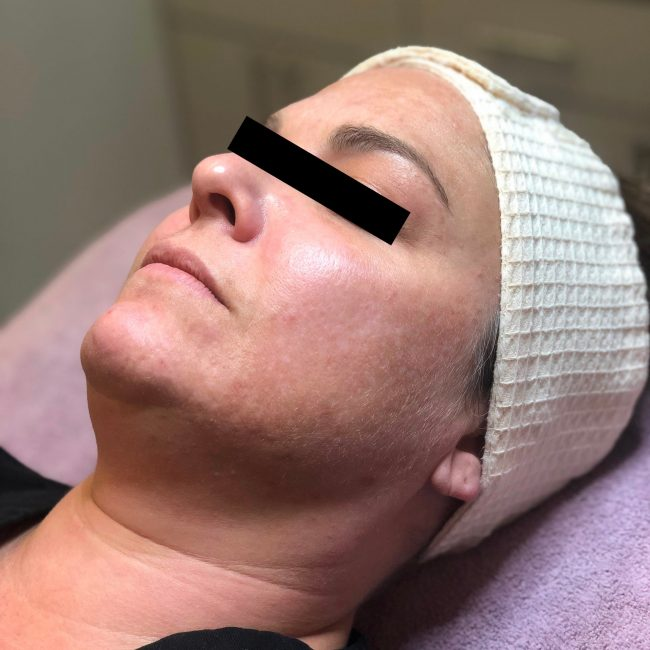 Dermaplaning Before & Afters   Skin Therapeutics Med Spa