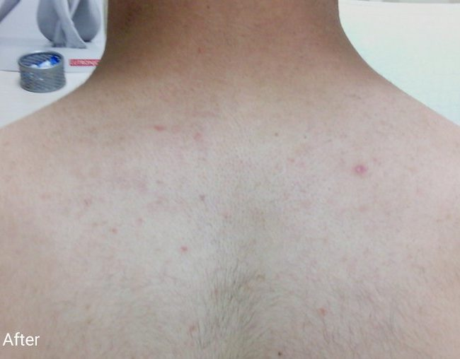 Clarity II Before & Afters   Skin Therapeutics Med Spa