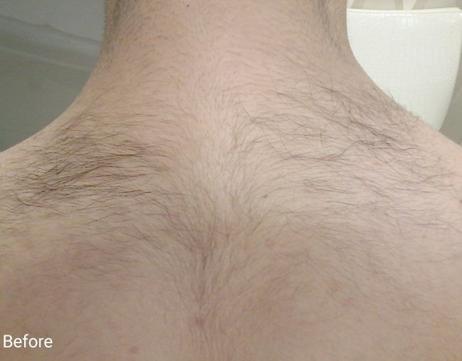 Hair Removal before