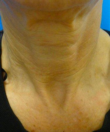 Laser360 Skin Rejuvenation Before & Afters   Skin Therapeutics Med Spa