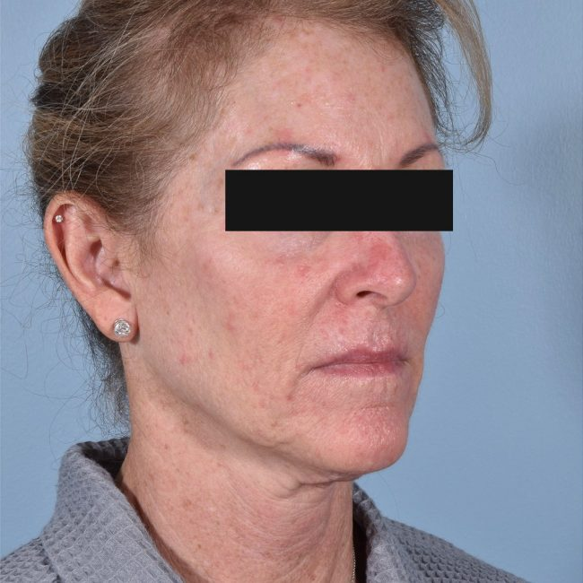 FaceTite Before & Afters   Skin Therapeutics Med Spa