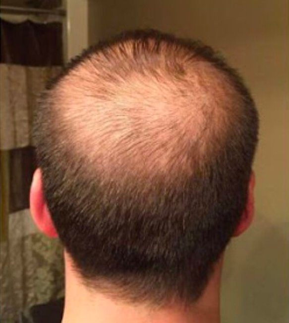 PRP Hair Restoration Before & Afters   Skin Therapeutics Med Spa