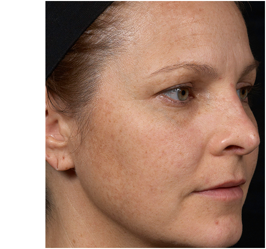 Clear + Brilliant Before & Afters   Skin Therapeutics Med Spa
